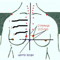 Корректирующий массаж для подтяжки и увеличения груди